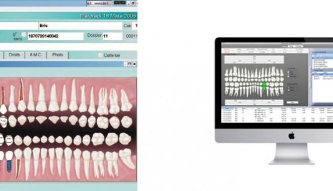 5 logiciels de gestion pour cabinet dentaire p. Black Bedroom Furniture Sets. Home Design Ideas