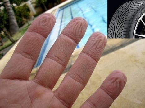 Dermatitis en yemas de los dedos