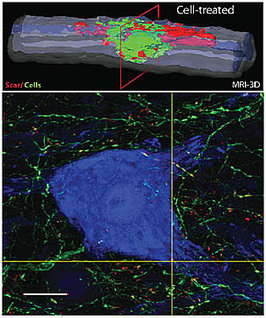 Stem cell injections improve spinal injuries in rats   KurzweilAI   Longevity science   Scoop.it