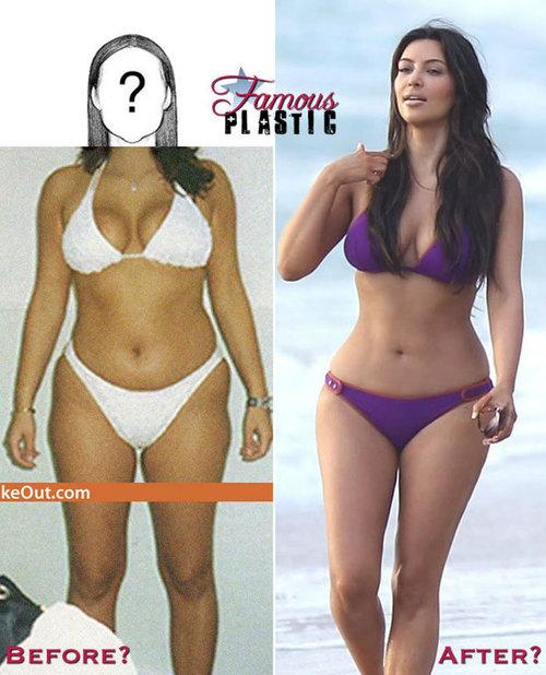 Leaked Photos of Kim Kardashian Before Liposuction ...