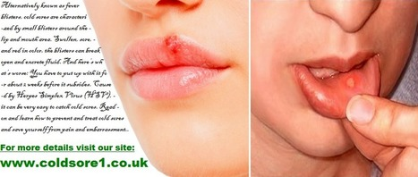 Cold Sore | Cold Sores and Herpes: coldsore1 co