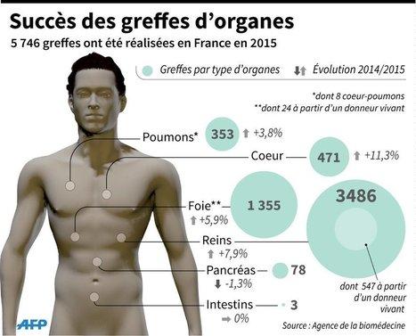 Greffes d'organes : quelle est la situation en France ? | Actualités monde de la santé | Scoop.it