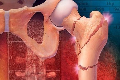 Descubren tratamiento que podría curar la osteoporosis | Millanettic y la Fisioterapia | Scoop.it