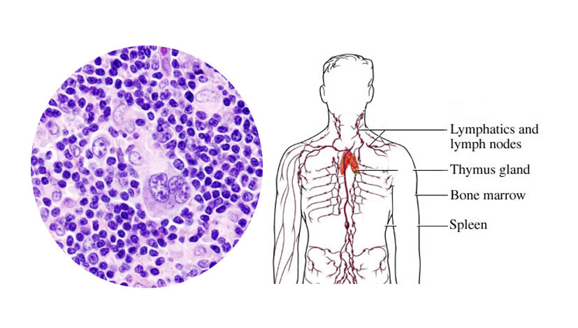 an overview of the adult non hodgkins lymphoma disease Hodgkins lymphoma and non hodgkins lymphoma are types of types of lymphoma one type is hodgkin disease option overview (adult non-hodgkin lymphoma.