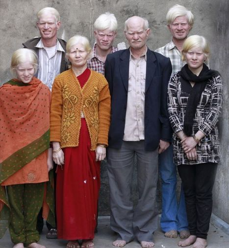 Indian Albino Family Wait To Be Recognised By Guinness World Records (PICTURES) | Amusing, Shocking & Thought-Provoking News | Scoop.it