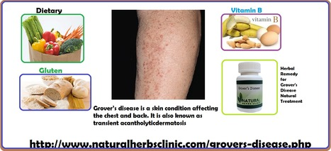 Grover S Disease Natural Treatment In Natural Herbs Clinic