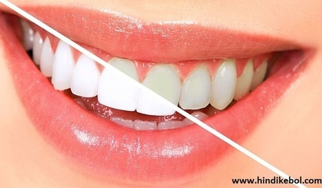 Hindi Home Remedies To Whiten Yellow Teeth Get Wh In Health Tips