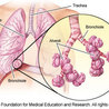 Interstitial lung desease