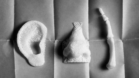 Cómo la impresión 3D está cambiando el mundo de la salud - Markonomia | Sanidad TIC | Scoop.it
