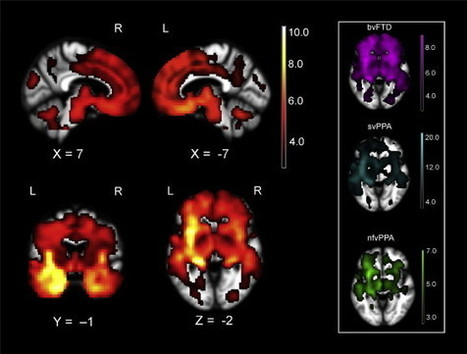 Crossman neuroanatomy pdf free download33 mo crossman neuroanatomy pdf free download33 fandeluxe Choice Image