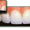Discover Cosmetic Dentistry - Hurstville