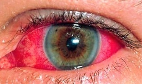 daño del lóbulo occipital ceguera por diabetes