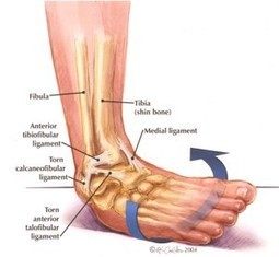 Stronger Ankles for Trail Running (Inspired by an egotistical Podiatrist!)   Exercise for health   Scoop.it