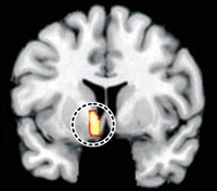 Game addicts display similar brain structure to that of drug addicts | An Eye on New Media | Scoop.it