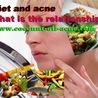 coconut oil for acne