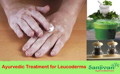 Leucoderma home o medicine for sexual health