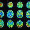 neuroscience in special education
