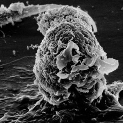 Two New Books Offer History and Criticism of Cancer Research | Lung Cancer Dispatch | Scoop.it