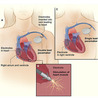 Heart Specialist in Delhi, Cardiologist, Valvuloplasty