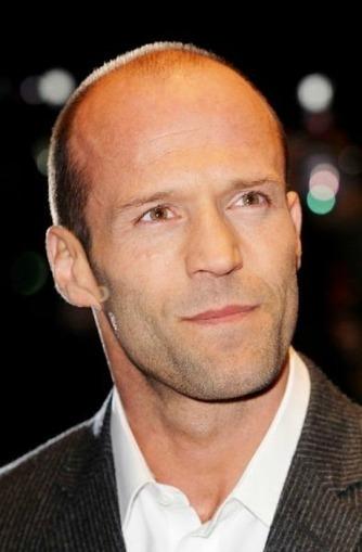Bald Celebrity In Hair Loss Tips Online Scoop