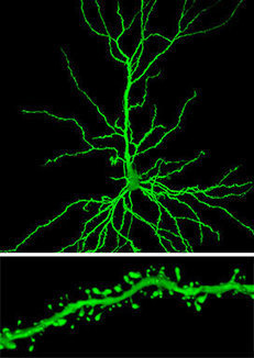 Alzheimer's Disease' in Alzheimer's Disease R&D Review, Page