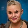 Alopecia And Hair Donation