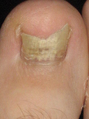 Toenail Fungus | Five Steps to Proper Foot Care | Diseases and Conditions | Scoop.it