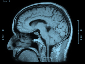 Teenage Brains Are Malleable And Vulnerable, Researchers Say : NPR | Self Care & Wellness | Scoop.it