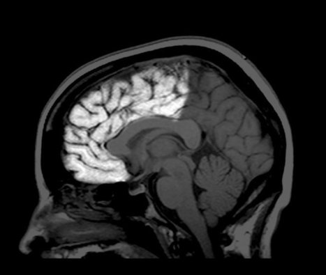 You're an Adult. Your Brain, Not So Much. | Cognitive Neuroscience | Scoop.it