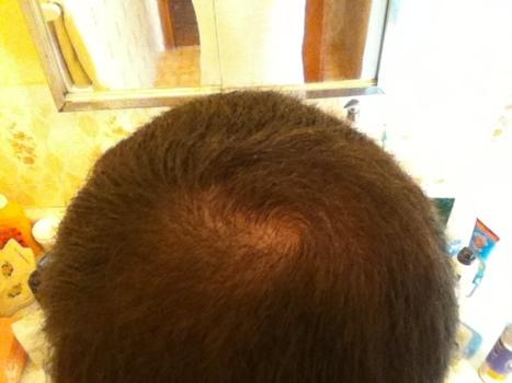 Great Hair Success Hairloss Talk Ways To S