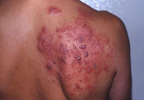 Cara Mengatasi Herpes Di Wajah Herpes Di Sela