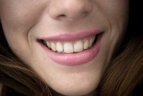 The Evolution of Dental Implants - U.S. News & World Report | Dental Implants | Scoop.it