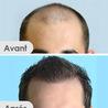 Cheveux Black extension