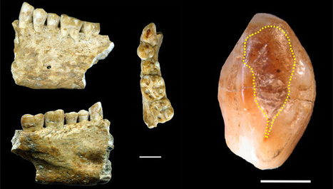 Ancient Tooth Provides Evidence of Human Dentistry 6,500 Years Ago | Archaeology | Sci-News.com | Ancient Health & Medicine | Scoop.it