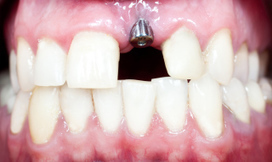 Claims for dental implants rise by 41% - Dentistry.co.uk | Dental Implants | Scoop.it