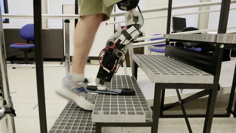 Une jambe artificielle animée par la volonté : Allodocteurs.fr   Actualités Santé   Scoop.it
