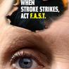 Stroke - Middle Cerebral Artery