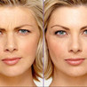 Age Management | Prevent Aging Signs