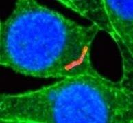 Bacterias radiactivas para curar el cáncer | microBIO | Scoop.it