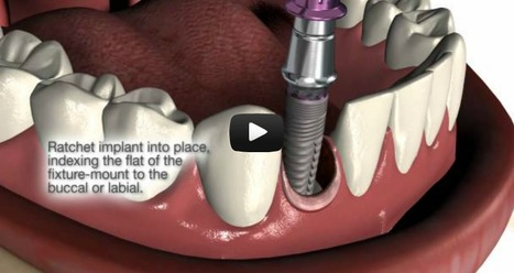 Two-piece fixture-mount from Implant Direct | Dental Implant and Bone Regeneration | Scoop.it