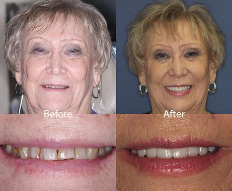 Boil-and-Bite Dentures a Quick, Cheap Alternati