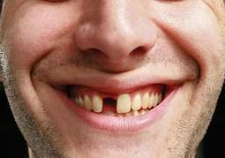 Scientists grow teeth using stem cells from urine: study - Ajan Reginald   Ajan Reginald   Scoop.it