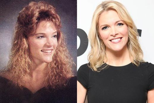 Megyn Marie Kelly Plastic Surgery Boob