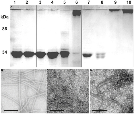 Pyrococcus furiosus flagella: biochemical and transcriptional analyses identify the newly detected flaB0 gene to encode the major flagellin | Archaeal surface structures | Scoop.it