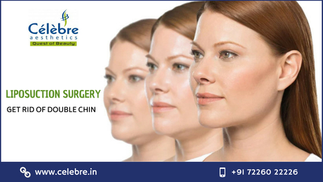Liposuction Surgery In Surat For Double Chin