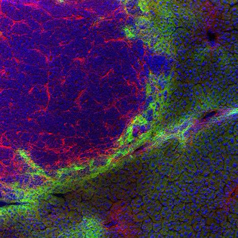 MacroGenics' in Top Selling Monoclonal Antibodies | Scoop it