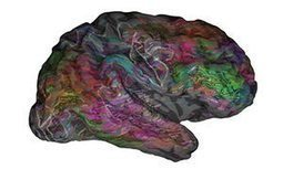Neuroscientists create 'atlas' showing how words are organised in the brain | Formation - Apprentissage - facilitation | Scoop.it