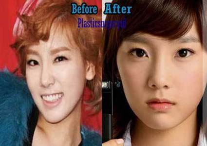 Taeyeon Snsd Plastic Surgery Before And After
