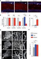 Autistic-like behaviour and cerebellar dysfunction in Purkinje cell Tsc1 mutant mice | Neuroscience_topics | Scoop.it