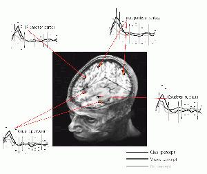 Grades of consciousness in thebrain | BrainWorks | Scoop.it